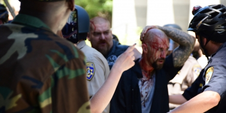 Police escort wounded man away from in front of the Cpitol in Scramento, Sunday, June 26, 2016, after members of right-wing extremists groups holding a rally outside the California state Capitol building clashed with counter-protesters, authorities said. Sacramento Police spokesman Matt McPhail said the Traditionalist Workers Party had scheduled and received a permit to protest at noon Sunday in front of the Capitol. McPhail said a group showed up to demonstrate against them. (AP Photo/Steven Styles)