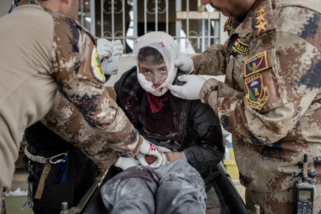 A young boy, wounded by shrapnel in his face and groin, is treated at a clinic in the Samah neighborhood of Mosul, Iraq on Dec. 1, 2016. He continued to drip blood through the gauze and bandages the medics wrapped him in before loading him into an ambulance.