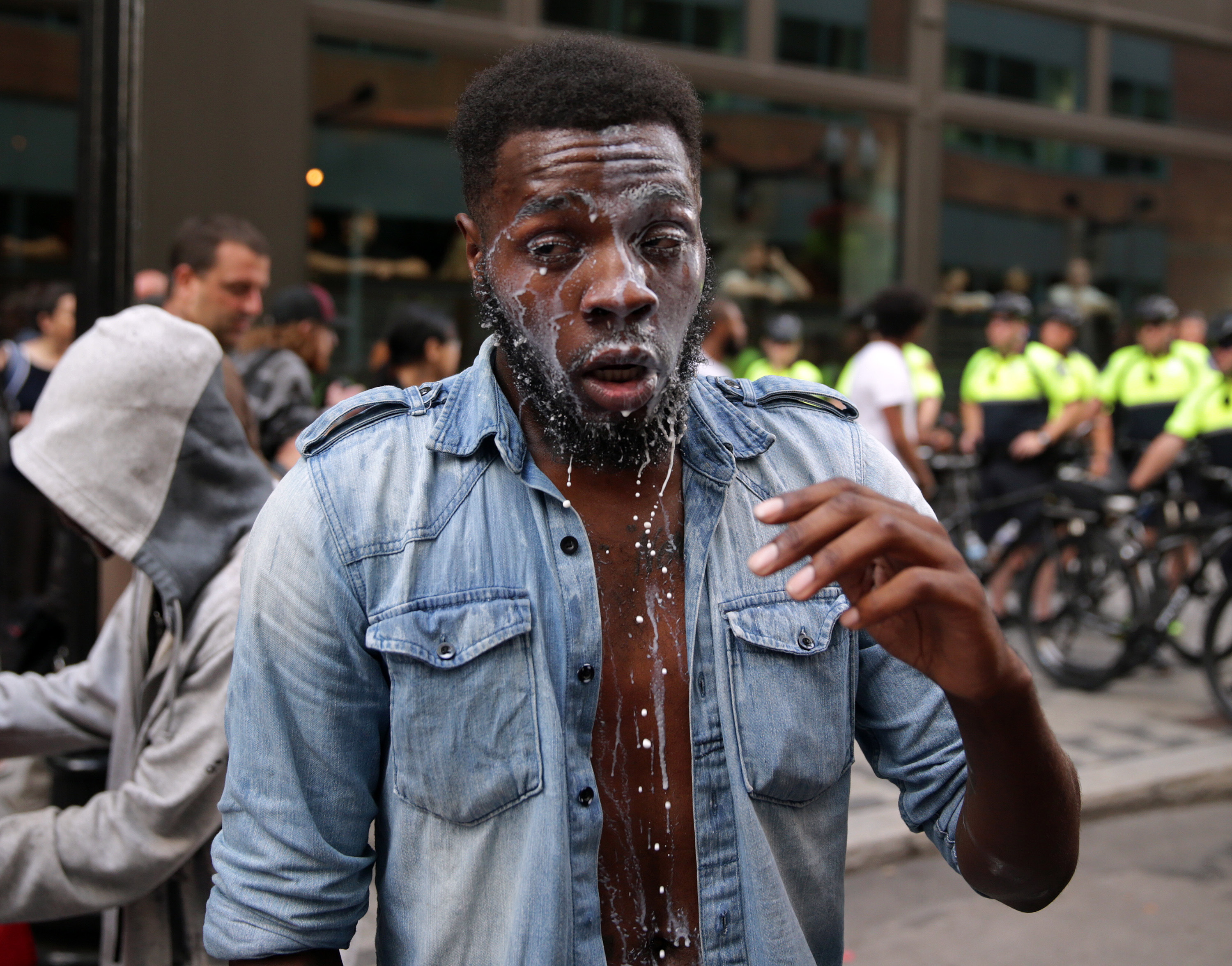 """BOSTON - AUGUST 19: A protester drips of milk after being maced on Washington Street in the tense situations that broke out following the """"Boston Free Speech"""" rally and counter protest in Boston on Aug. 19, 2017. (Photo by Jonathan Wiggs/The Boston Globe via Getty Images)"""